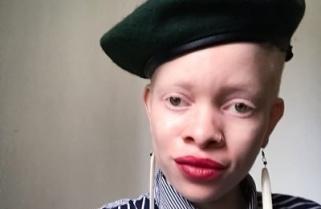 """Night Club in Kigali Denies Entry to """"Albino"""" Zimbabwean Woman"""