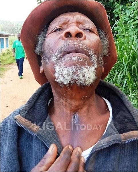 Petero Rukema, shows a hole pierced through his throat by FDLR militia