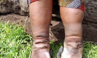Imidido Or Podoconiosis, New Hope For Sufferers