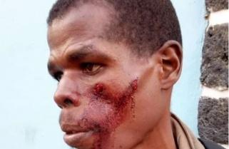 Battered in Uganda, Uzabumwana Succumbs to His Injuries