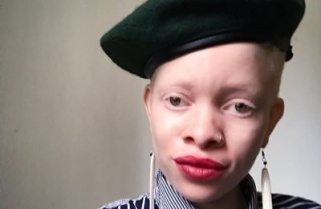 "Night Club in Kigali Denies Entry to ""Albino"" Zimbabwean Woman"